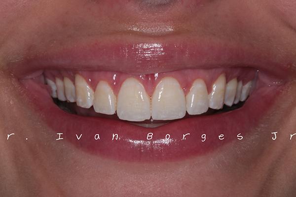 Aumento Estético dos Dentes - Depois