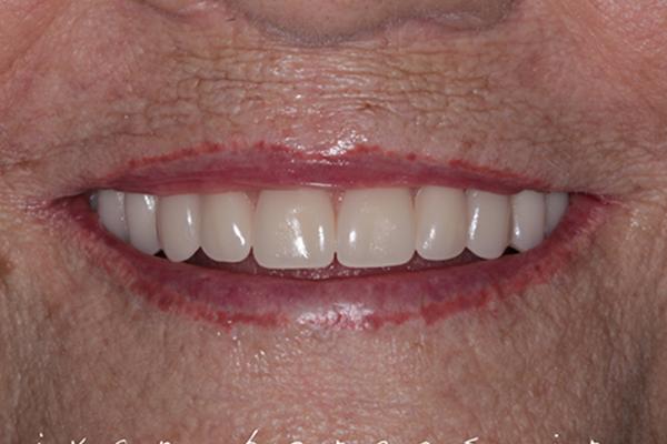 Implantes Dentais - Depois